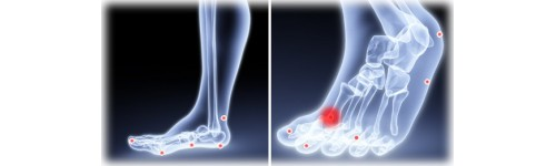 Toe Joint Pain